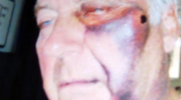 Some of the injuries sustained by Ken Oliver - the terminally ill cancer sufferer was beaten up by a teenage thug