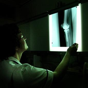 A backlog of almost 58,000 X-rays was uncovered at Adelaide and Meath Hospital in Tallaght