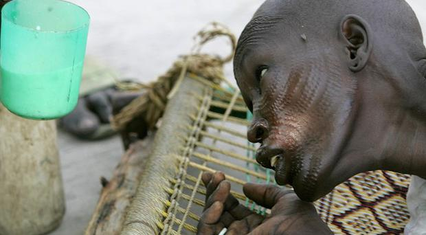 More than 300 people have died due to an outbreak of a parasitic tropical disease in Southern Sudan