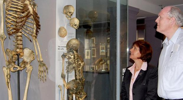 Professor Marta Korbonits with the skeleton of the 'Irish Giant', Charles Byrne and Brendan Holland, who has the same gene