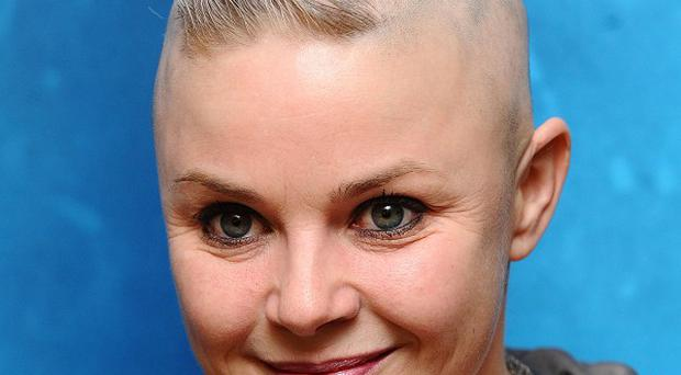Gail Porter says she's coping with her hair loss