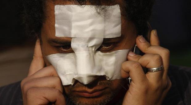 A man with a bandaged face uses a mobile phone during a demonstration in Cairo (AP)