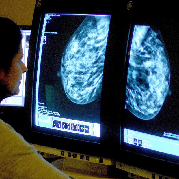 Experts have blamed lifestyle factors, including obesity and drinking alcohol, for fuelling the rise in breast cancer
