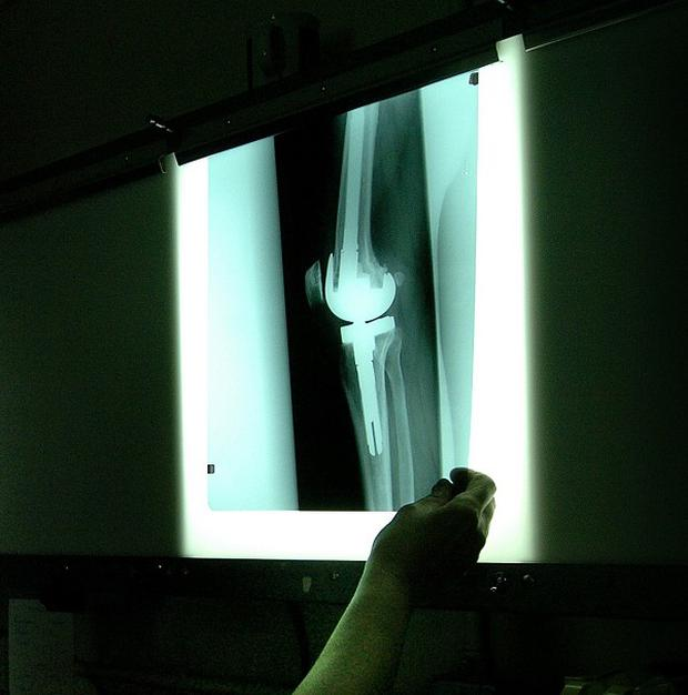 Thousands of X-rays were processed late at the hospital