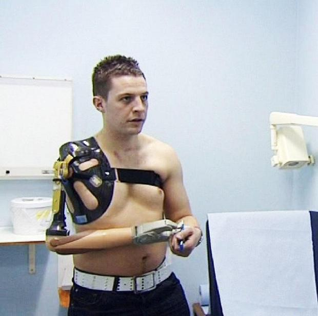 Corporal Andrew Garthwaite, 23, of the Queen's Royal Lancers, who is the first military amputee to be fitted with a bionic arm (British Forces Broadcasting Service)