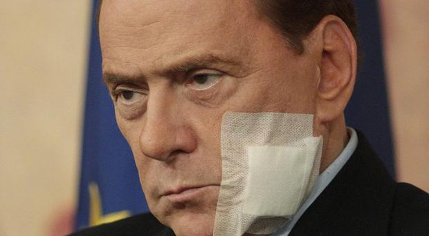 Italian premier Silvio Berlusconi, pictured sporting a dressing after jaw surgery, wants to introduce legal reforms (AP)