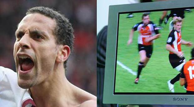 <b>RIO FERDINAND</b><br/> During his spell at Leeds the England defender managed to pick up a tendon strain in his knee watching television. Ferdinand had his foot up on a coffee table for a number of hours and ended up injuring a tendon behind his knee