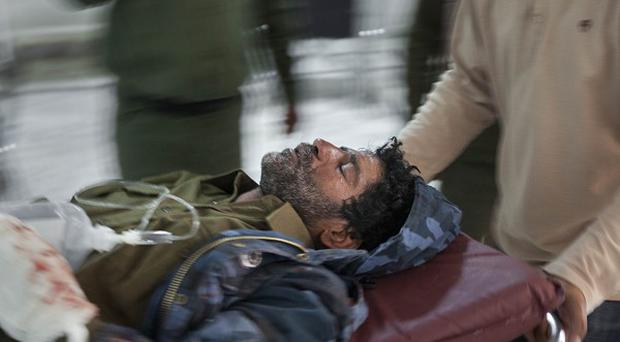 A rebel fighter wounded in an attack by pro-Gaddafi forces is wheeled into the hospital in Ajdabiya, Libya (AP)