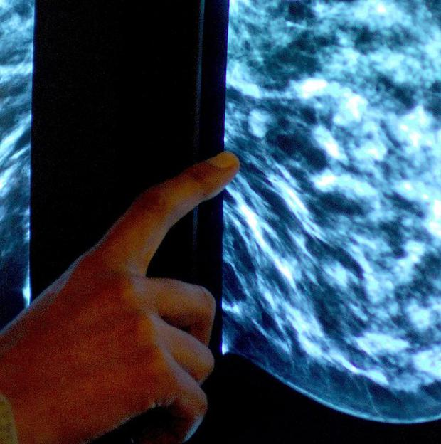 Older cancer sufferers are under-treated and are more likely to be diagnosed late, says report