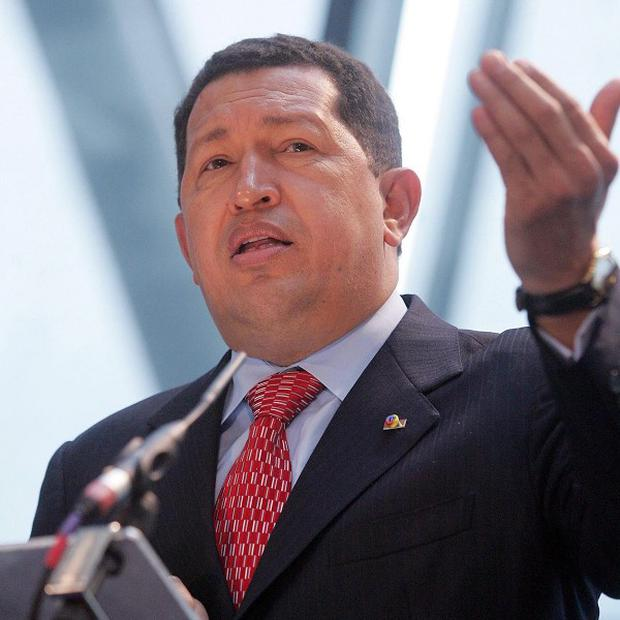 Hugo Chavez told Venezuelans that he expects to lose his hair as a result of his cancer treatment
