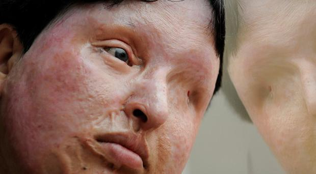 Ameneh Bahrami, who was blinded and disfigured by a man who poured acid on her face, has pardoned her attacker (AP)