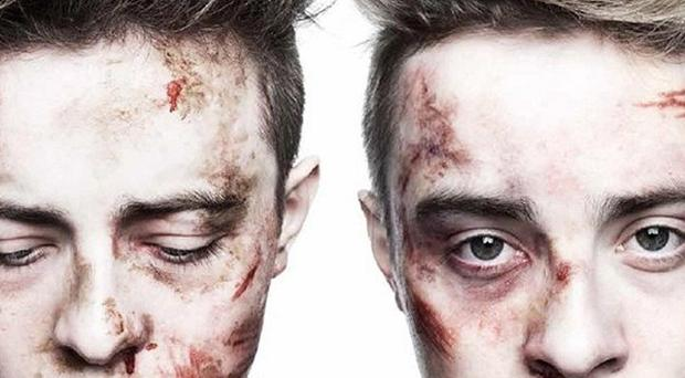 Jedward appear bruised and battered in the posters launched by the Irish Society for the Protection of Cruelty to Children