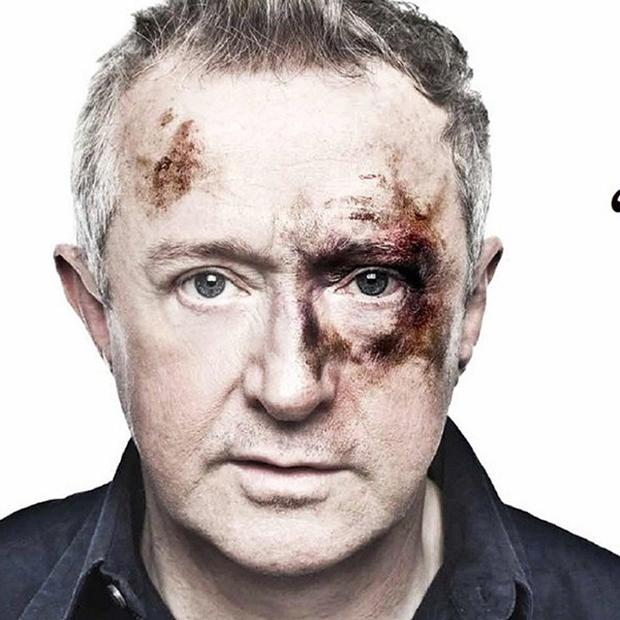 Louis Walsh has posed as an assault victim in a hard-hitting campaign against bullying