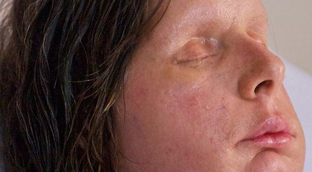 Charla Nash, 57, had a face transplant in May after she was mauled by a chimpanzee (AP)