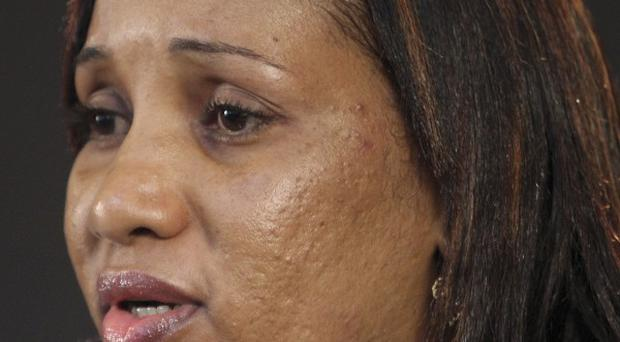 Nafissatou Diallo accused former IMF head Dominique Strauss-Kahn of sexually attacking her (AP)