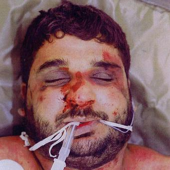 Baha Mousa who died in British military detention