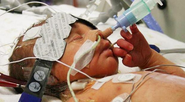 Joshua Titcombe, who died nine days after his birth at Furness General Hospital in Cumbria in October 2008