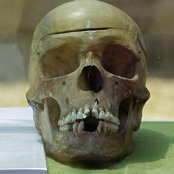 A skull returned from Germany on display in the city of Windhoek, Namibia (AP)