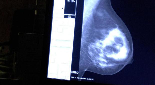 Professor Sir Mike Richards has launched an independent review of NHS breast screening