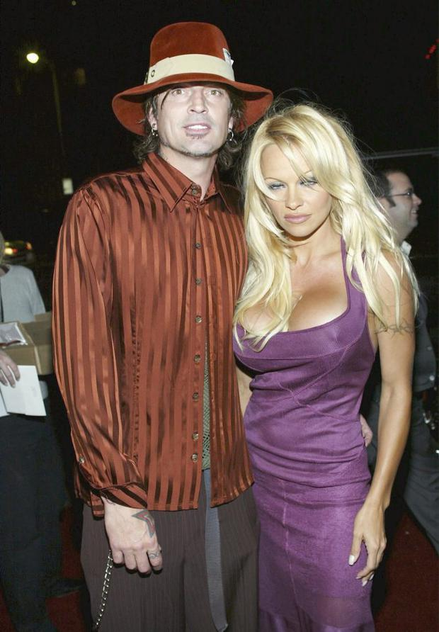 Tommy Lee and Pamela Anderson