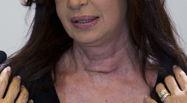 Argentina's President Cristina Fernandez shows the surgical scar on her neck (AP)