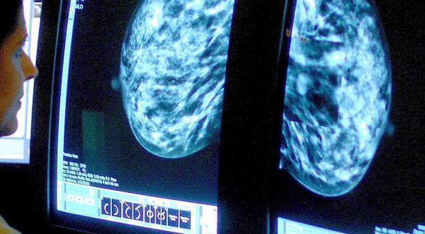Figures released to coincide with World Cancer Day reveal new cases of cancer could rise 30 per cent in the UK by 2030