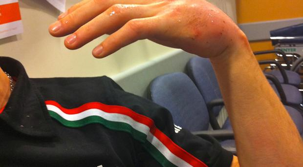 Eugene Laverty shows his injured hand which he fractured in a 315kph crash in World Superbike Championship testing