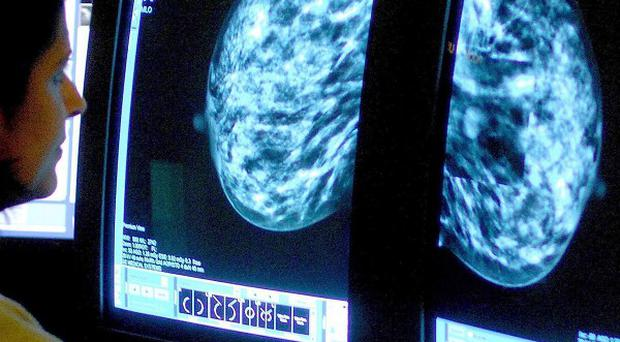 A breast cancer research team hope the results of their study will lead to tailored treatment plans