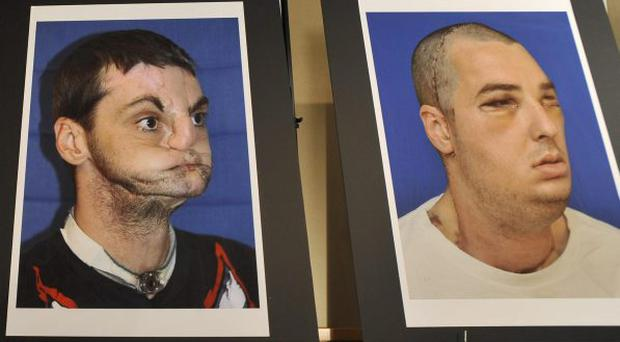 A series of photographs of Richard Lee Norris, the recipient of the most extensive full face transplant completed to date are exhibited during a news conference Tuesday, March 27, 2012 at the University of Maryland Medical Center in Baltimore. (AP Photo/Gail Burton).