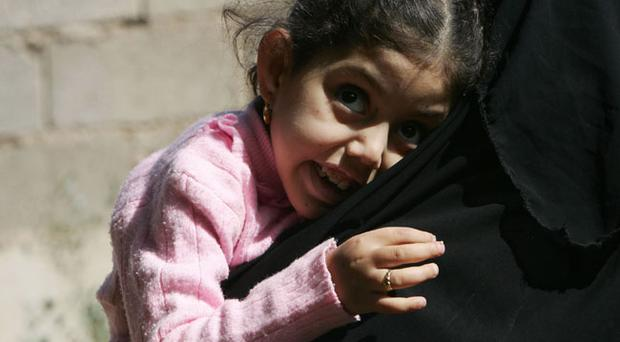 Mariam Yasir (L), age 6 years old, who suffers from a birth defect, cries as her mother carries her on November 12, 2009 in the city of Falluja west of Baghdad, Iraq