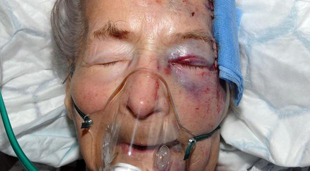 Ninety-four-year-old Emma Winnall in hospital after she was attacked as she slept
