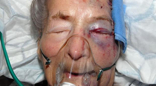 Emma Winnall, 94, who was attacked in her own home said she was 'struggling to understand' why she was targeted