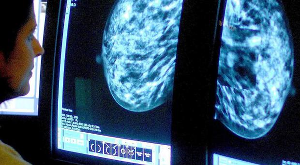 Breast cancer patients who do not opt to have a mastectomy should be warned about the risks of needing another operation, say researchers