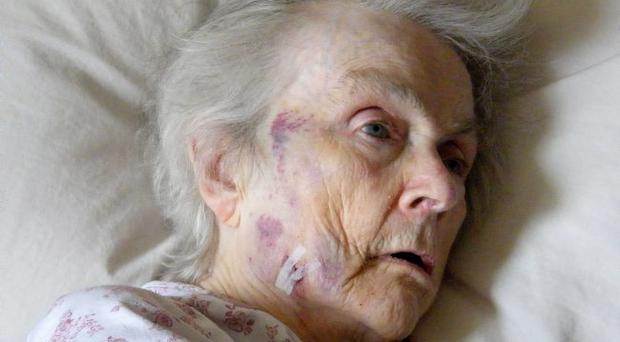 Press Eye - Belfast - Northern Ireland - 5th August 2012. ©Jonathan Porter/Presseye. Collect picture of 81-year-old Kathleen Cunningham who is a resident at Brooklands Nursing Home in west Belfast. Mrs Cunningham was attacked on Friday by another patient. See copy by Suzanne Breen.