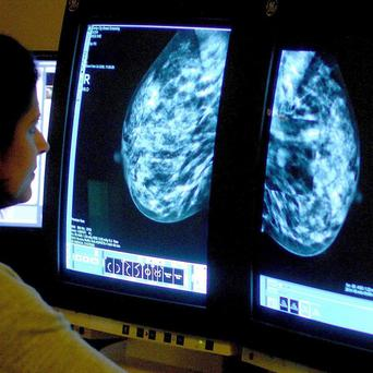 Avastin, a breast cancer drug, does not provide value for money, according to Nice