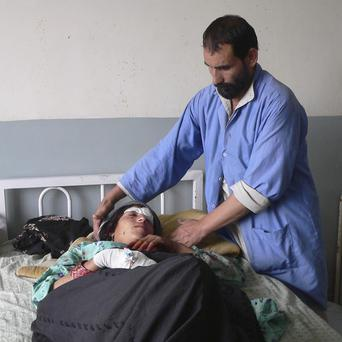 An Afghan woman is treated in hospital in the Alingar district of Laghman province, east of Kabul, Afghanistan (AP)
