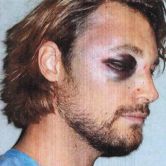 Gabriel Aubry, who was arrested after a Thanksgiving confrontation at Halle Berry's house (AP)