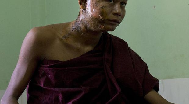 A Buddhist monk with burn injuries after security forces cracked down on protesters occupying a copper mine (AP)
