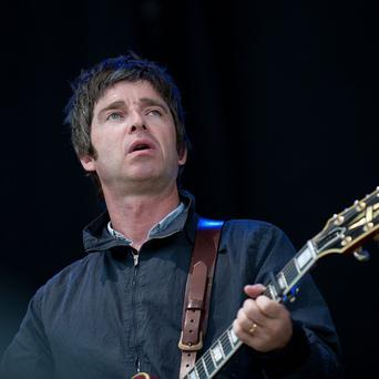 Noel Gallagher suffers from ringing in his ears