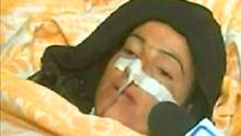 Syrian television showing footage of an injured woman