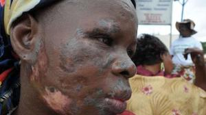 A woman whose face is disfigured, reportedely due to the dumping of toxic waste in August 2006 in various quarters of Abidjan