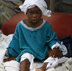 An injured child sits on the sidewalk in Port-au-Prince, Haiti (AP/Ricardo Arduengo)