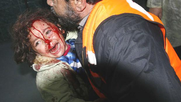 A child arrives at Shifa hospital in Gaza City after an Israeli air strike yesterday