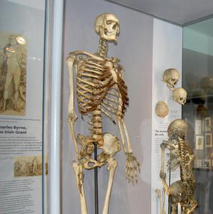 The skeleton of the 'Irish Giant', Charles Byrne, is to remain at the Hunterian Museum in London