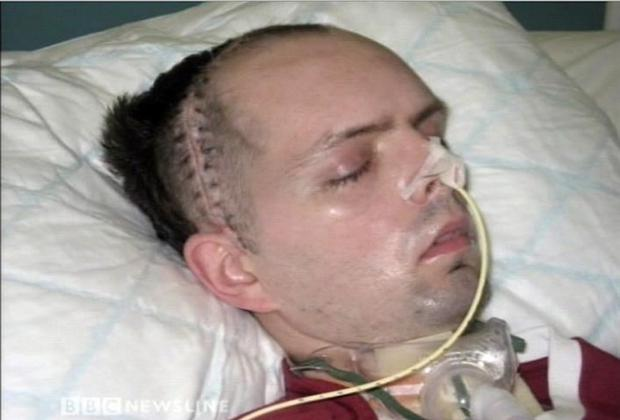 Assault victim Paul McCauley lies in a coma