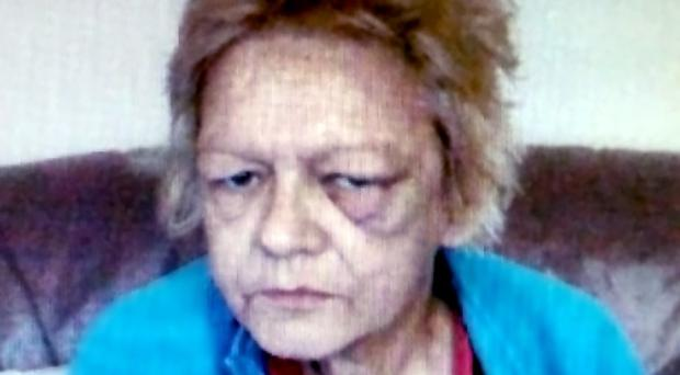 One of the last photographs of Deborah Hunter shows her bruised and battered face which, she alleged before her death, was the result of an attack