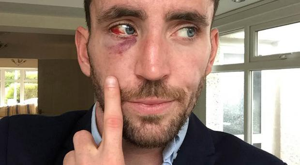 Ryan Hand shows his injuries after he was attacked in Newcastle