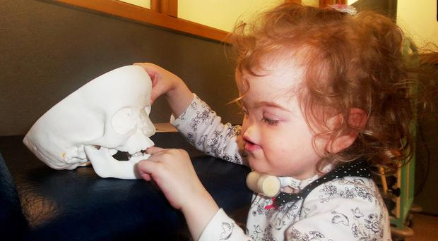 Tessa with the model of her skull and new nose, which was created by a 3D printer