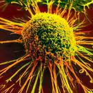 Nanoparticle reporter loaded with either a chemotherapy or immunotherapy glows green when cancer cells die
