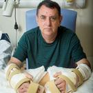 Chris King, from Doncaster, with his new hands at Leeds General Infirmary